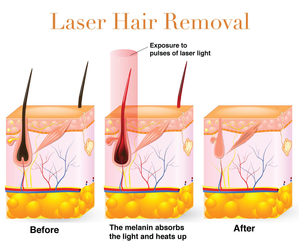 Infographic on laser hair removal
